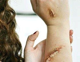 Як намалювати шрам на Хеллоуїн на руці і обличчі
