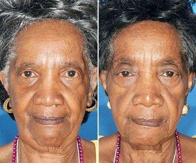 Фотографії близнюків, один з яких курив! Результат очевидний.